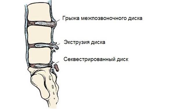 Разрыв фиброзного кольца проходит несколько стадий. Секвестрированное ядро диска - последняя стадия грыжи
