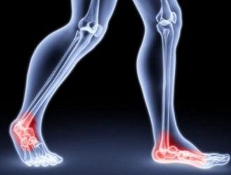 Боли в ноге при грыже позвоночника