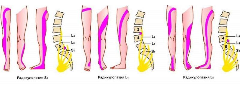 Места локализации боли при ущемлении поясничных нервов