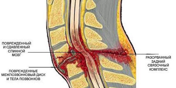 Тяжелая степень ушиба характеризуется повреждением позвонков и спинного мозга