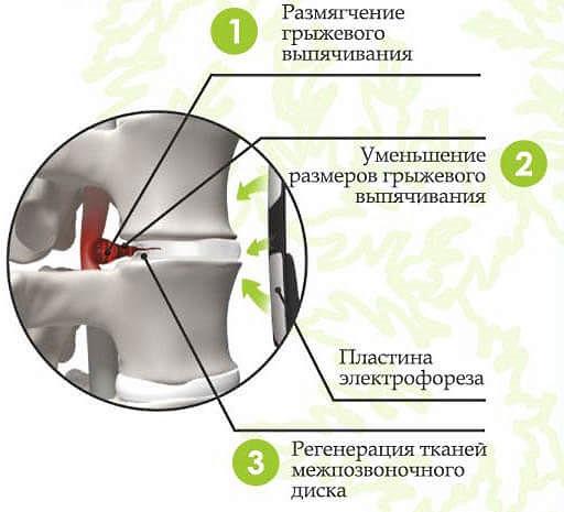 Электрофорез с Карипазимом эффективен на начальной стадии позвоночной грыжи