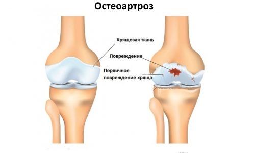 При остеоартрозе также можно использовать противовоспалительное средство