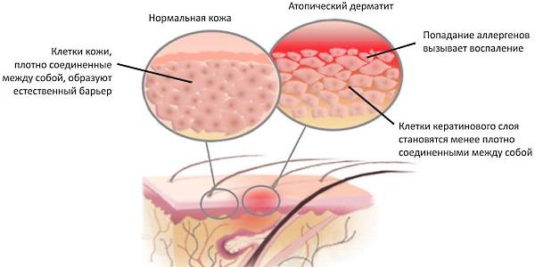 Назначают гормональный препарат при различных дерматитах