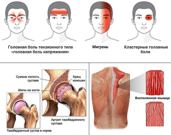 Назначают Нобедолак при головных, суставных и мышечных болях