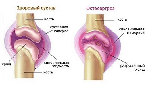 Назначают Аркоксия при остеоартрозе, артрите и других патологиях суставов