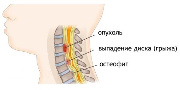 Тизанил помогает бороться с мышечными спазмами в следствии дегенеративных повреждений спинного мозга