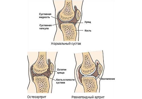 Используют Нурофен Экспресс при различных суставных болях