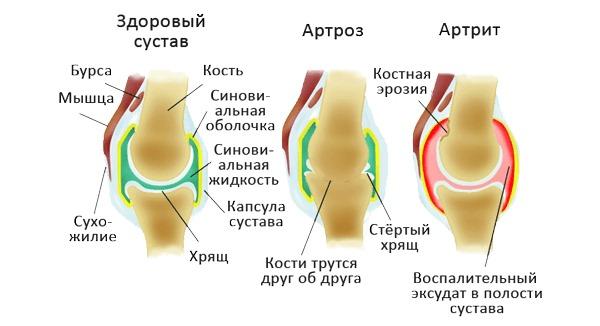 При артрозе и артрите могут использовать внутрисуставные инъекции Кеналога