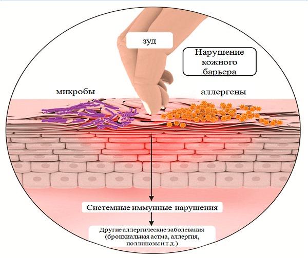 Меновазин можно использовать при кожном дерматозе