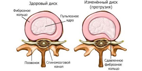 При протрузии  также возникает хруст в спине