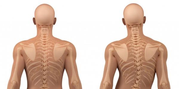 Ниже приведен список основных симптомов сколиоза у взрослых