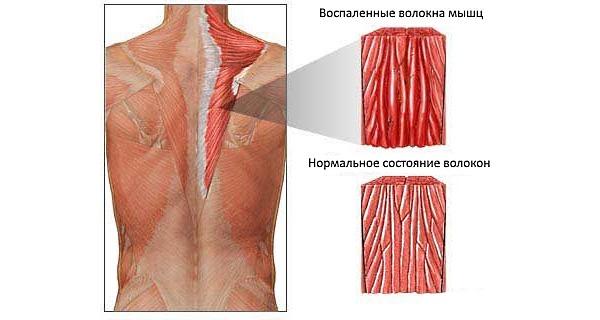 Миозит характеризуется воспалением мышечных волокон мышц