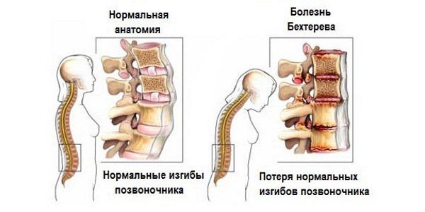 Изменения в позвоночнике при Бехтеревой болезни также вызывает болезненные ощущения в спине