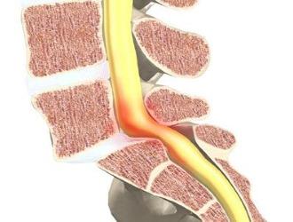 Спондилолистез может привести к защемлению нерва и позвоночной артерии