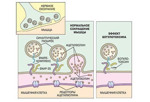 Для лечения кривошеи у взрослых применяют такой препарат как ботулотоксин