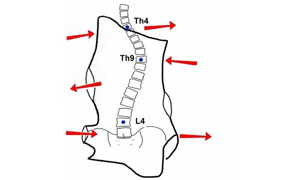При 3 степени сколиоза применяют корсеты, которые оказывают давление на искривление позвоночника