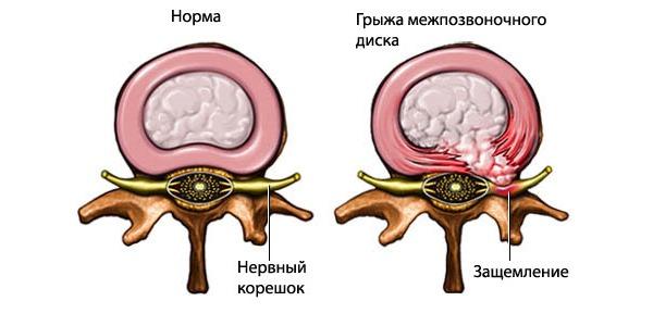 Межпозвоночная грыжа - одно из самых сложных заболеваний, вызывающее хруст в спине