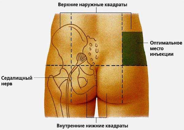 Если укол делается в ягодицу, то его делают в оптимальную зону, чтобы не задеть седалищный нерв