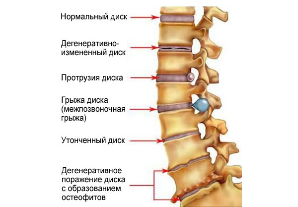 Одни из первых причин радикулита - остеохондроз и остеофиты