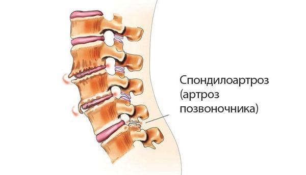 Если нетипичные звуки при разгибании и сгибании сопровождаются болью в позвоночнике можно говорить об артрозе