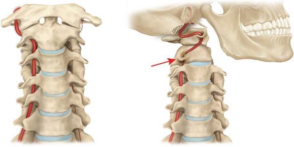Особое внимание стоит уделить при синдроме шейной артерии, так как от нее зависит питание мозга