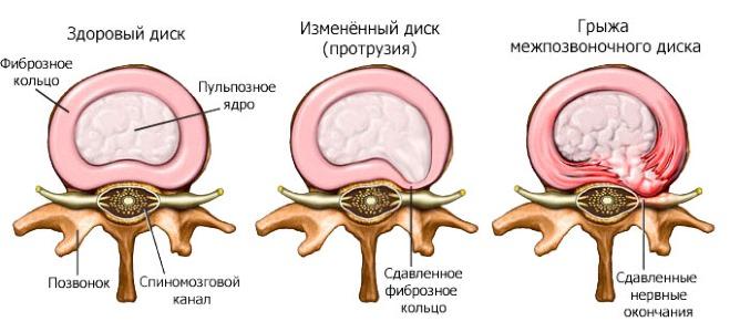 Одной из причин боли в позвоночнике является развитие протрузии и межпозвоночной грыжи