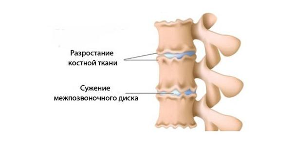 Изменения в дисках при остеохондрозе способствуют появлению нетипичных щелчков в позвоночнике