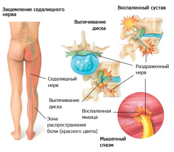 Если болевые ощущения внизу спины сопровождаются болью в ноге, то это говорит о компрессии седалищного нерва
