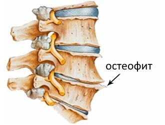О дегенеративно-дистрофических изменениях свидетельствует разрастание остеофитов