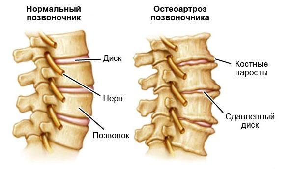 При остеоартрозе позвоночника разрушения происходят в хрящевой и костной ткани