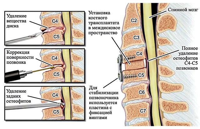внутрисуставная инъекция в плечо