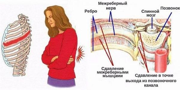 Межреберная невралгия слева со спины