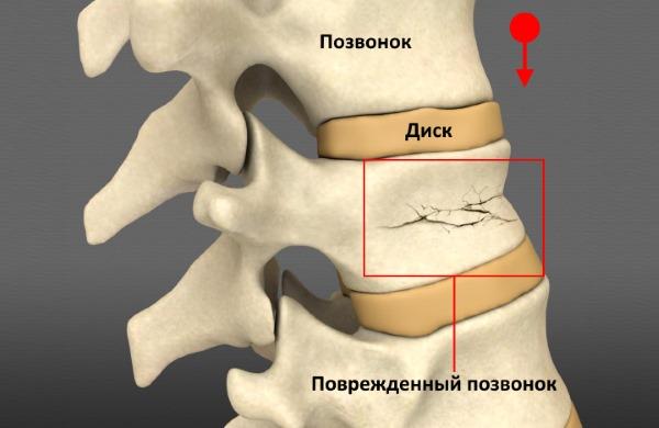 Компрессионный перелом позвоночника - одна из самых частых травм спины