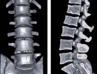 Рентген с функциональными пробами делают в боковой проекции в точках сгибания позвоночника
