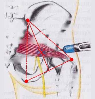 При наличии сильной боли возможно потребуется применение обезболивающих инъекций