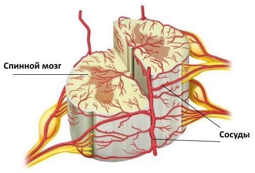 Сосудистая миелопатия возникает если нарушено кровообращение позвоночника