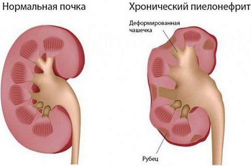 Пиелонефрит характеризуется острыми болевыми приступами внизу спины