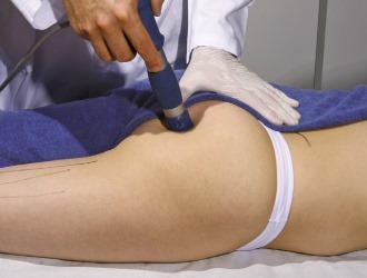 Если синдром грушевидной мышцы ничем не осложнен, то возможно применение физиолечения