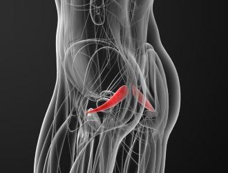 Спазм грушевидной мышцы