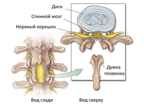 Наиболее радикальный метод лечения остеоартроза позвоночника - ламинэктомия