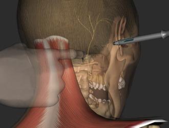 Блокада нерва - самый быстрый и действенный метод снять боль