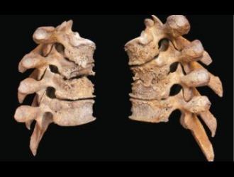 Остеофиты бывают задними, передними, боковыми