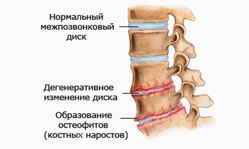 Большинство дегенеративных изменений в позвонках шеи сопровождаются хрустом