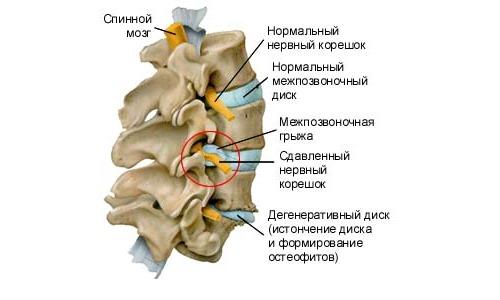 Операция при радикулите требуется, если возникла сильная компрессия корешка спинного мозга
