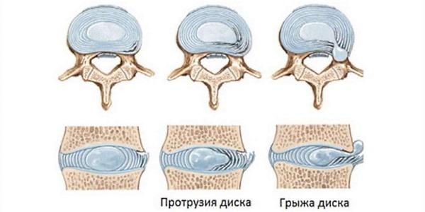 Дистрофические изменения в позвоночнике происходят по причине нарушения питания хрящевой ткани