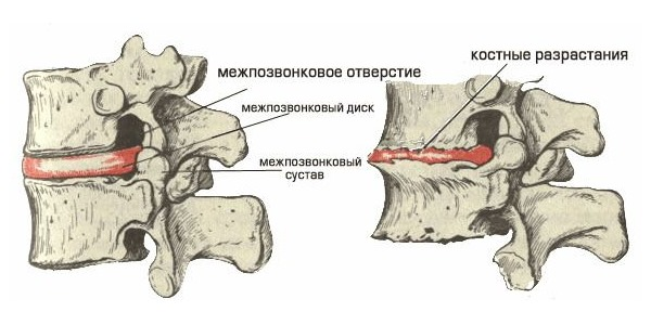 Краевые остеофиты тел позвонков: что это такое и методика лечения