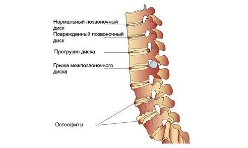 Боли в шее при поворотах могут свидетельствовать о дегенеративных изменениях в позвоночнике