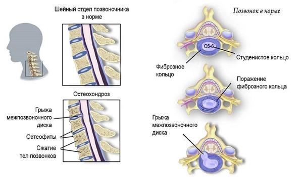 Чаще всего постоянная боль в шее возникает по причине остеохондроза и протрузий дисков