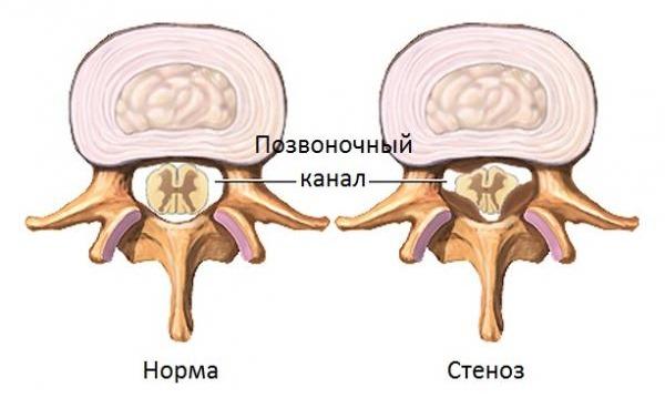 Стеноз позвоночного канала также приводит к появлению болей в шейном отделе