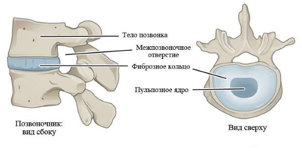 При хондрозе дистрофические изменения затрагивают только межпозвонковый диск